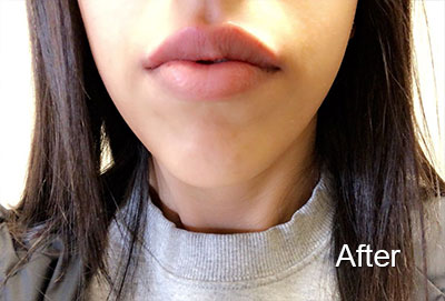 Woman's lips after botox injection
